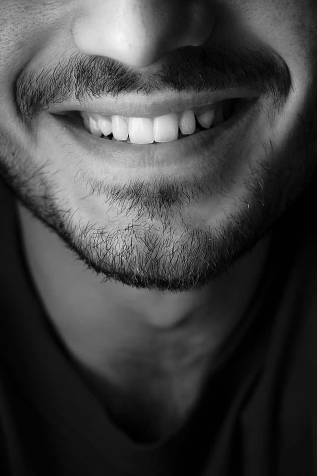 having white teeth like this will boost your confidence